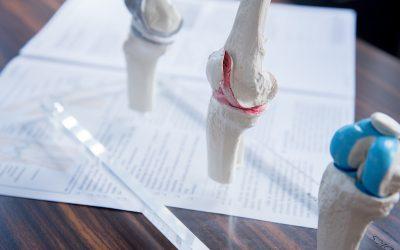 Infoabend über Arthrose