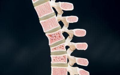 Infoabend über Osteoporose